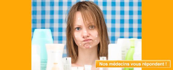 Adolescente acné