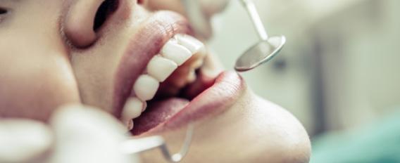 Femme allongée chez le dentiste